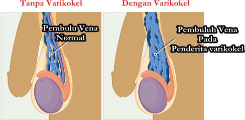 Obat Herbal Varikokel Di Apotik Yg Terbukti Ampuh Tanpa Operasi