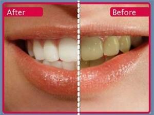 Tiền mất tật mang vì tẩy trắng răng sai cách 1