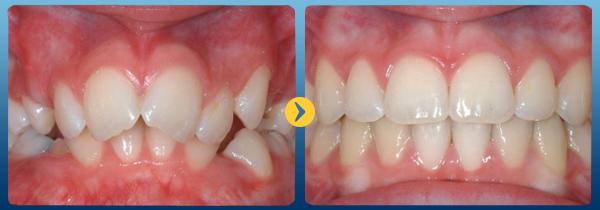Cách nắn chỉnh răng hô có hiệu quả khi bị hô hàm không? 1