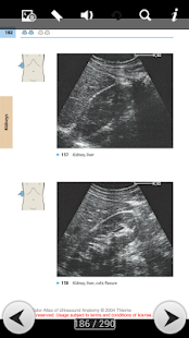 Abdominal Ultrasound Guide- screenshot thumbnail