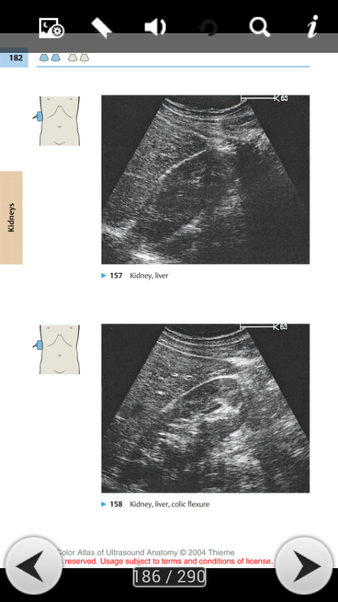Abdominal Ultrasound Guide- screenshot