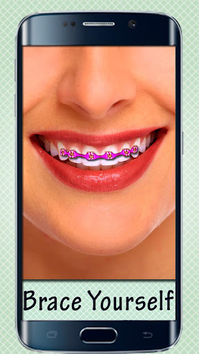 Fake Braces - Photo Editor