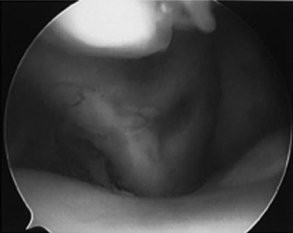 Arthroscopic views of a biceps tendon with tenosynovitis and partial avulsion