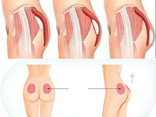 Nâng mông nội soi: Tự tin khoe vòng 3 căng tròn  - Ảnh 1