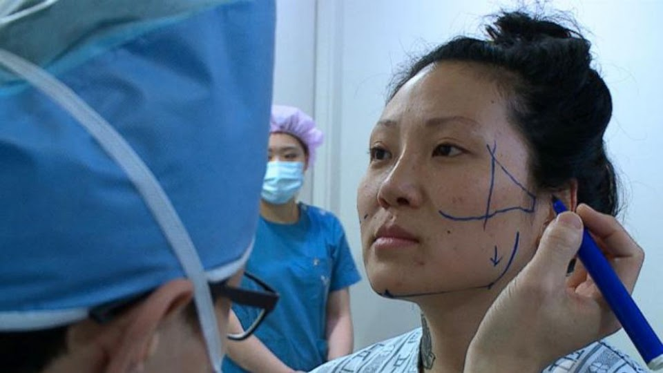 Plastic surgery in South Korea