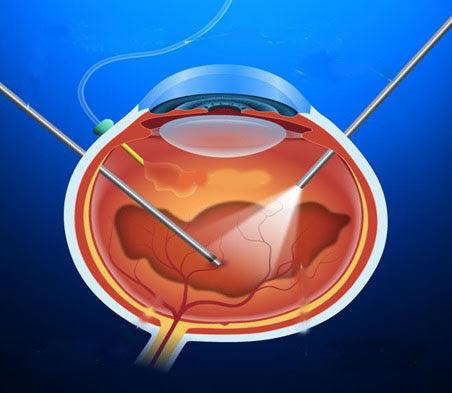Hút bỏ dịch kính giúp loại bỏ máu và sẹo khi trị bệnh võng mạc tiểu đường