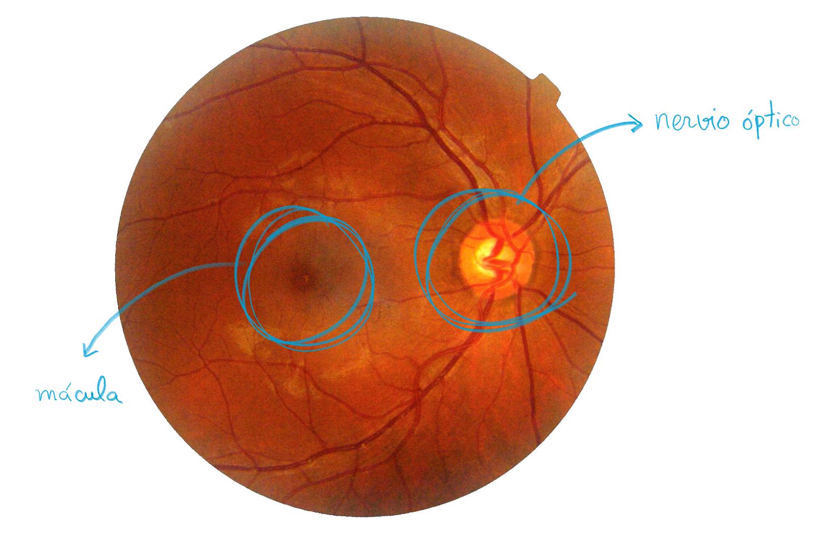 Ejemplo de retinografía de la retina en la que se señalan la mácula y el nervio óptico