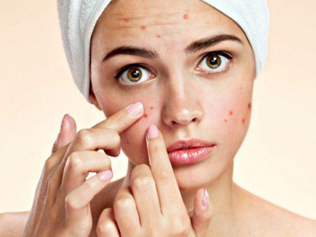 Có nhiều nguyên nhân khiến da mặt bạn bị nổi mụn
