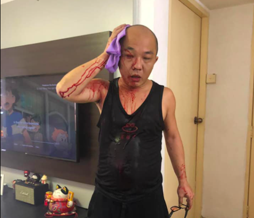 Man attacks neighbour with bicycle chain for allegedly blocking his path