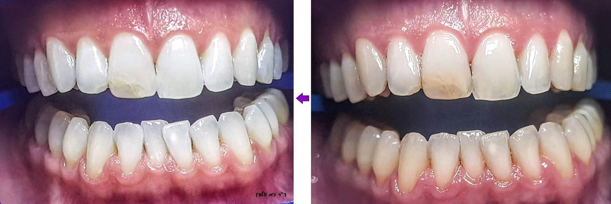 """הלבנת השיניים בצורה בטוחה ומהירה, תוך שעה במרפאה, ד""""ר גיא וולפיפן"""