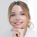 Remove Acne from Face icon