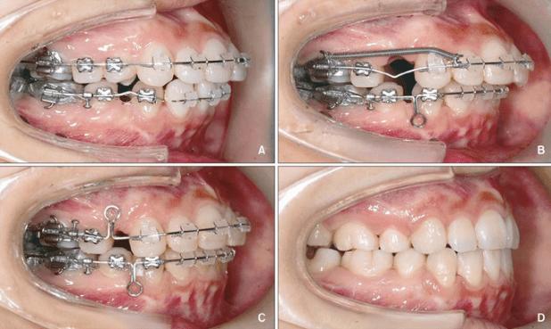 Cách niềng răng hô được thực hiện như thế nào? 1