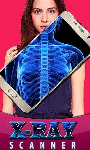 X-ray Scanner Body Parts Prank