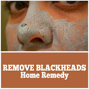 Remove Blackheads Home Remedy