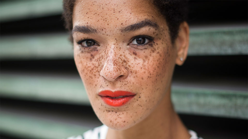 DIY Natural Remedies: How To Get Rid Of Dark Spots On Face