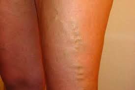 Treatment of thigh veins