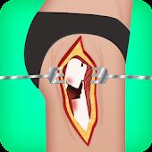 hip surgery games