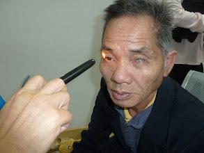 Photo: Mổ mắt cho đồng bào huyện Kim Bôi, Hoà Bình ngày 26 tháng 11 năm 2011
