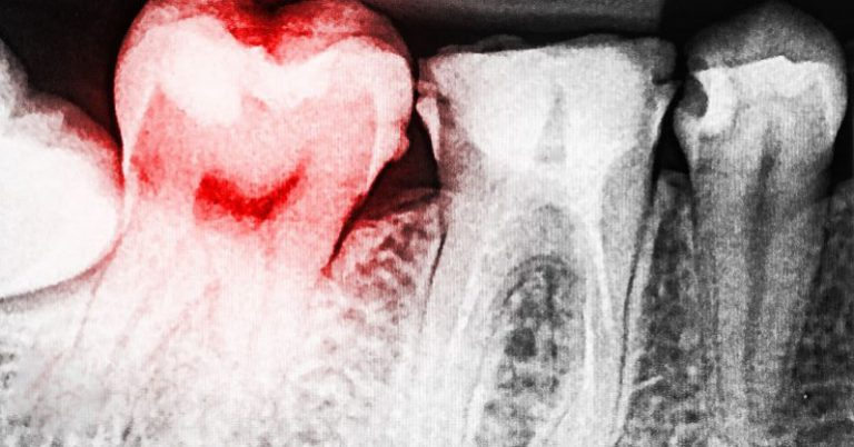 9 signs you have a toxic tooth infection and how to treat it before going to a dentist