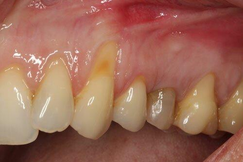 https://www.efp.org/fileadmin/uploads/patients_area/Photos/multiple-gingival-recession.jpg