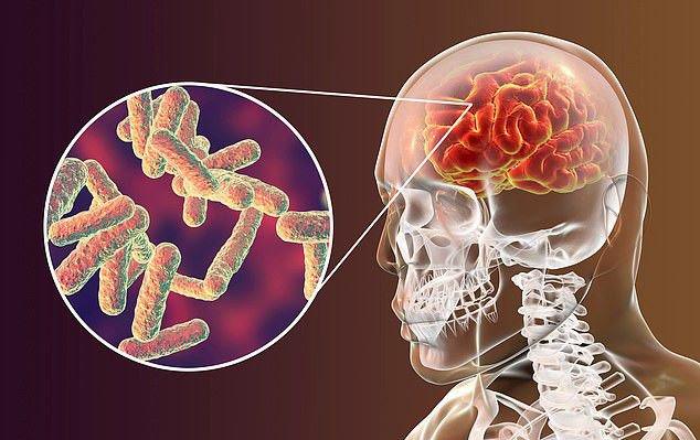 Viêm màng não do vi khuẩn
