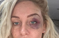 Josie Gibson thought she was going to die during attack