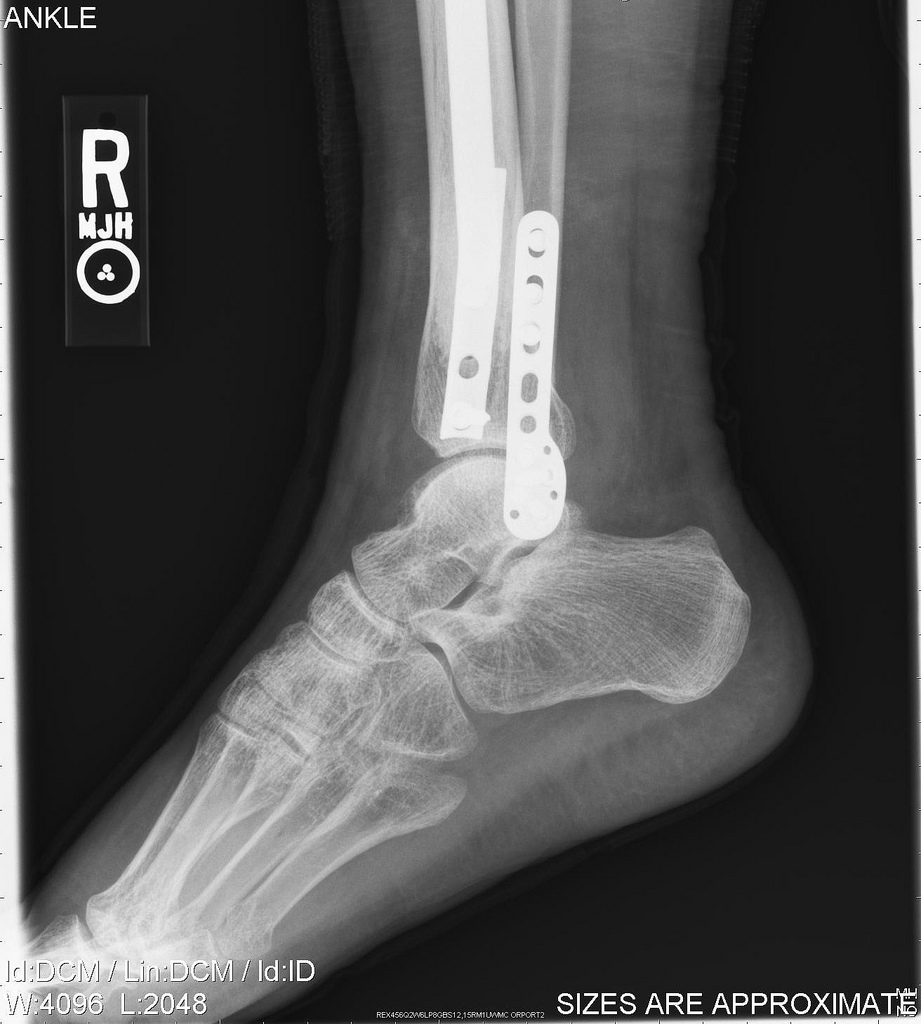 Image result for broken ankle x ray