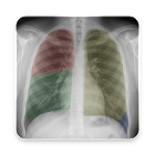 Chest X-Ray And Pathology icon
