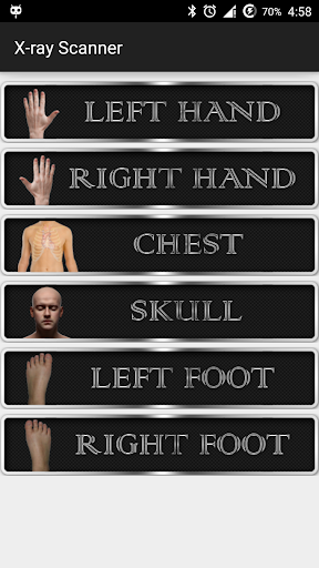 X射线人体扫描恶作剧