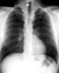 Image result for coarctation of aorta x ray