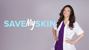 Save My Skin thumbnail
