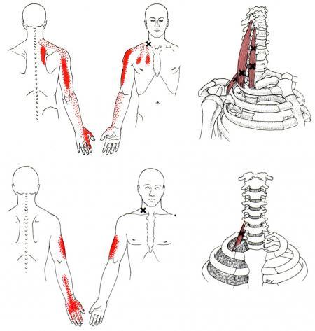 scalene trigger point diagram