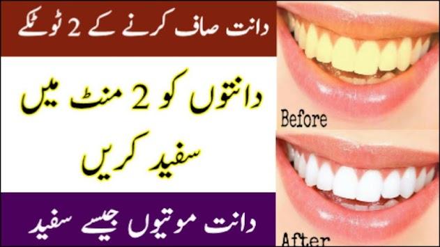 Download 2 Cara Untuk Memutihkan Gigi Secara Alami Di Rumah Obat Apk
