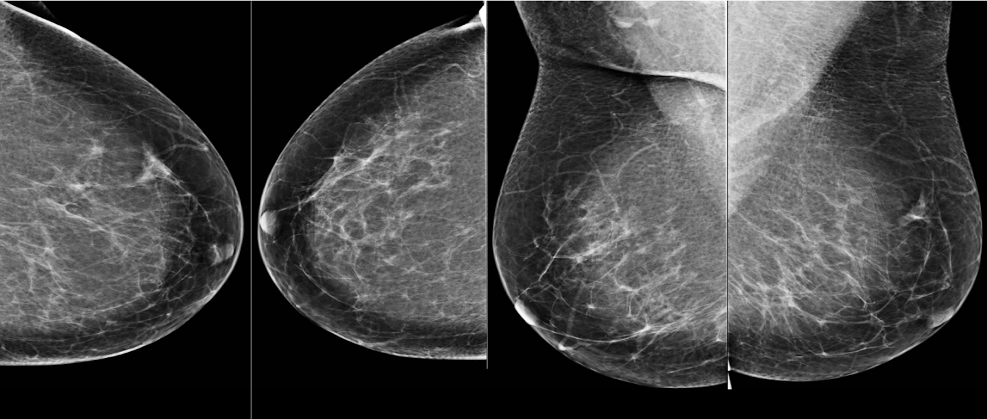 International Evaluation Of An Ai System For Breast Cancer