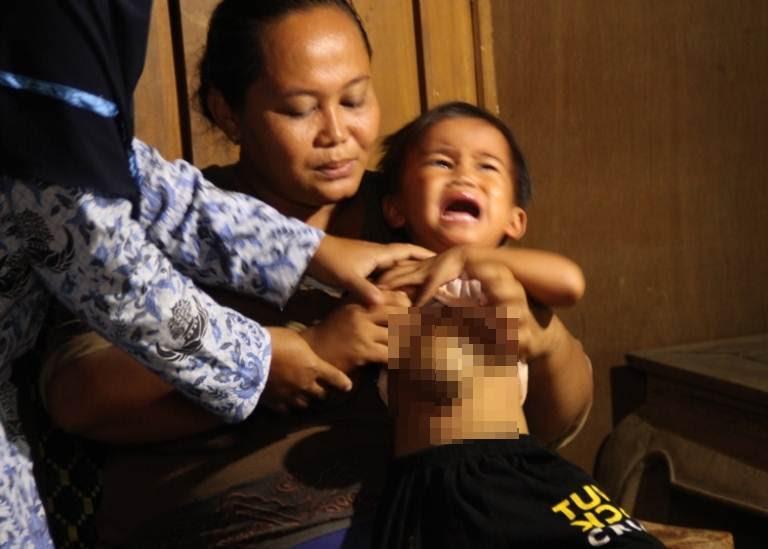 Balita asal Ngawi ini tumbuh benjolan di Pusar