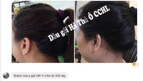 4 cách chữa tóc bạc sớm bằng khế chua hiệu quả