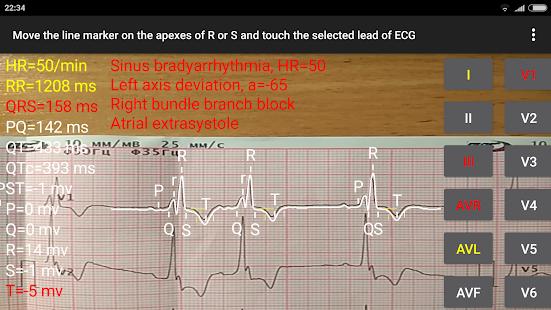 ECG Reader 2 - náhled