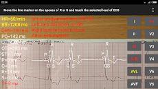 ECG Reader 2のおすすめ画像4