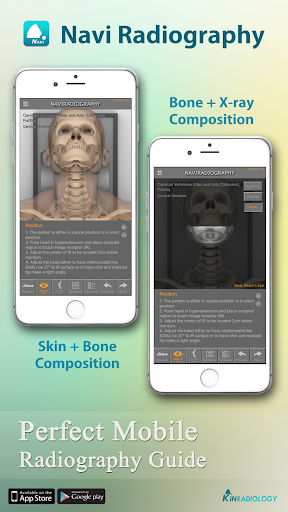 玩免費醫療APP|下載Navi Radiography Free app不用錢|硬是要APP