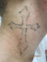 Photo: Pre 4th Laser Tattoo Removal Treatment at Las Vegas Dermatology