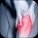 Leg Pain Treatment (app)