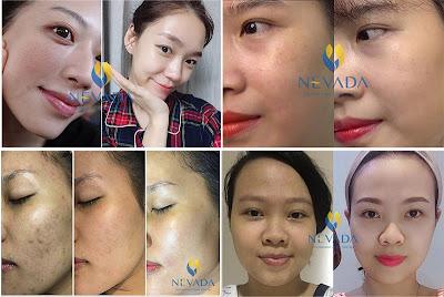 Chăm sóc gia hoàn hảo với Luxy Skin