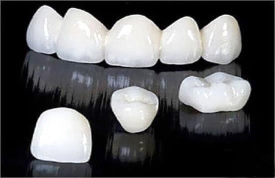 Răng sứ không kim loại giá bao nhiêu rẻ nhất hiện nay?
