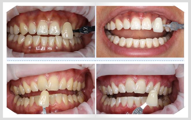 Răng sứ không kim loại giá bao nhiêu ưu đãi nhất hiện nay 1