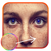 Freckles Photo Edit – Beauty Salon