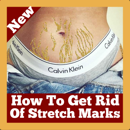 How To Get Rid Of Stretch Marks With Home Remedies