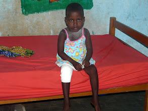 Photo: pour visiter la petite Merveille, née par césarienne après le décès de sa mère venue accoucher !...elle vient de subir une intervention chirurgicale au genou qu'elle ne pouvait plier. Nous avons participé aux frais d'opération et savons qu'elle a rejoint l'orphelinat de Klouékanmé et qu'elle marche très bien à présent.