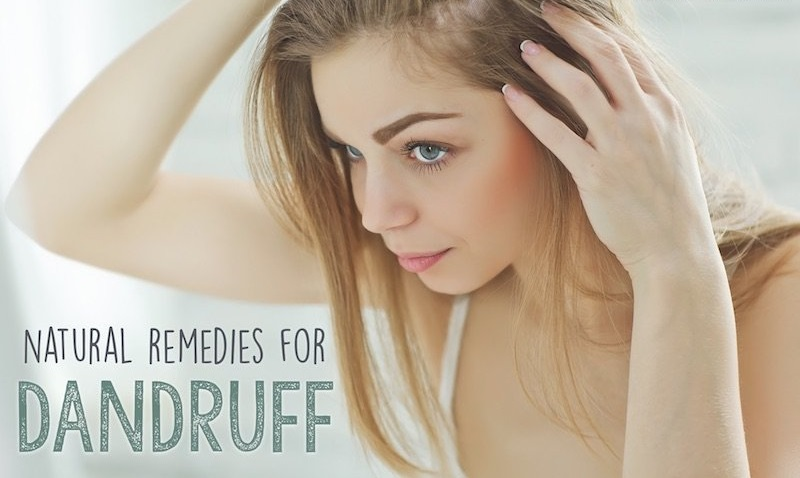 How to Get Rid of Dandruff, Easy & Effective Natural Remedies