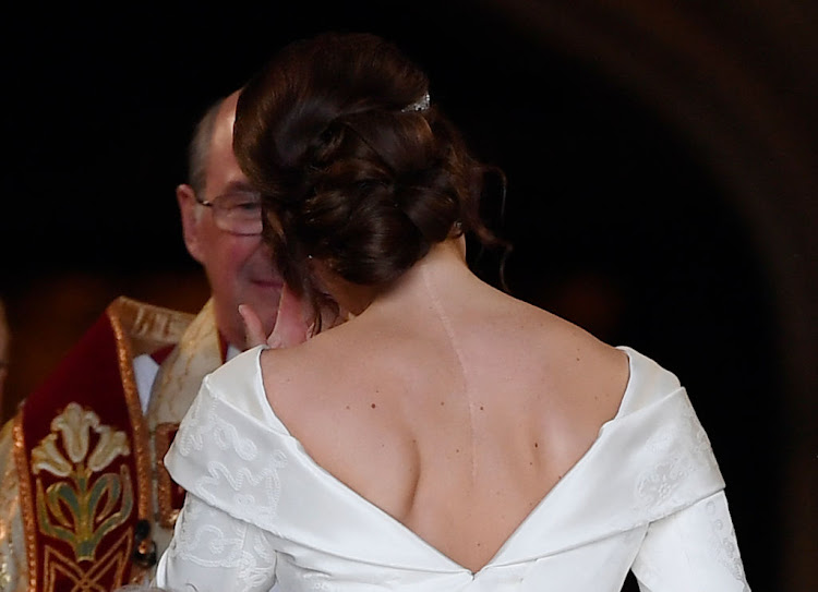 Princess Eugenie hoped to help change people's perception of beauty by wearing a dress with a low back that showed off the scar she received when she had surgery to correct scoliosis at age 12.