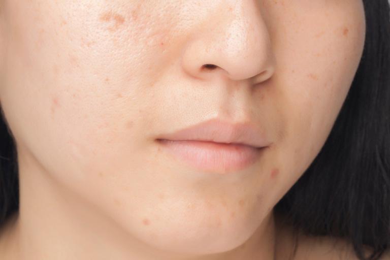 Trị mụn thâm tại nhà với các mẹo đơn giản, hiệu quả và an toàn cho da